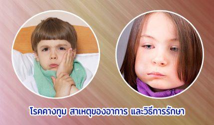 โรคคางทูม สาเหตุของอาการ และวิธีการรักษา