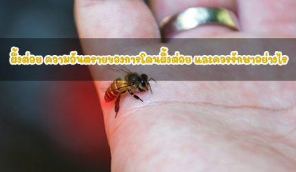 ผึ้งต่อย ความอันตรายของการโดนผึ้งต่อย และควรรักษาอย่างไร